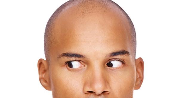 hair-loss-steroid